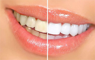 Teeth Whitening in Centerville, OH