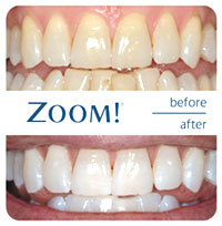 ZOOM!® Teeth Whitening | Porcelain Veneers | Composite Veneers | Dayton